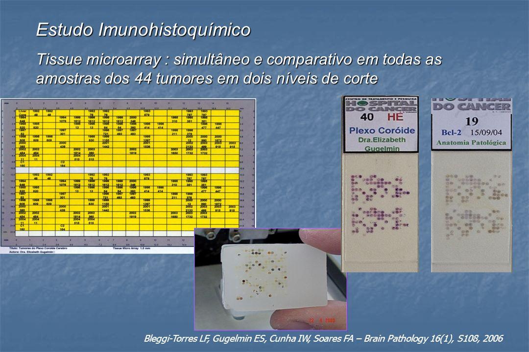 Estudo Imunohistoquímico Tissue microarray : simultâneo e comparativo em todas as amostras dos 44 tumores em dois níveis de corte Bleggi-Torres LF, Gu