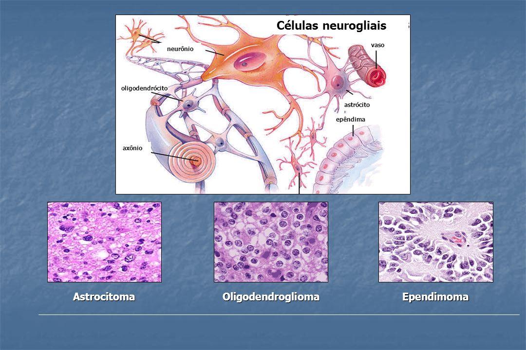 AstrocitomaOligodendrogliomaEpendimoma Células neurogliais astrócito vaso epêndima neurônio oligodendrócito axônio
