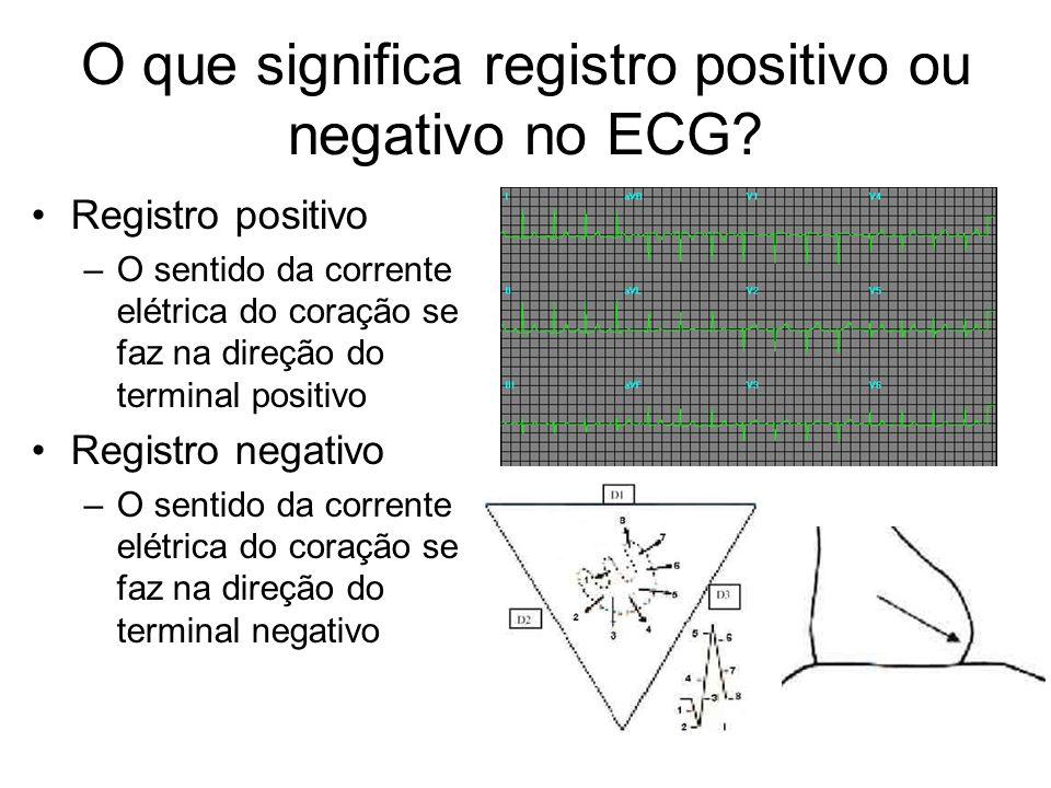O que significa registro positivo ou negativo no ECG? Registro positivo –O sentido da corrente elétrica do coração se faz na direção do terminal posit