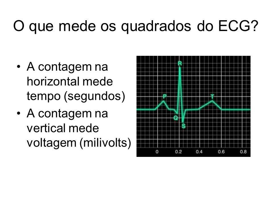 O que mede os quadrados do ECG? A contagem na horizontal mede tempo (segundos) A contagem na vertical mede voltagem (milivolts)