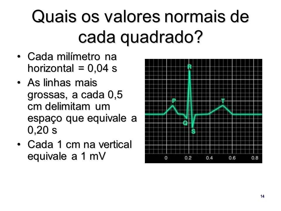 14 Quais os valores normais de cada quadrado? Cada milímetro na horizontal = 0,04 sCada milímetro na horizontal = 0,04 s As linhas mais grossas, a cad