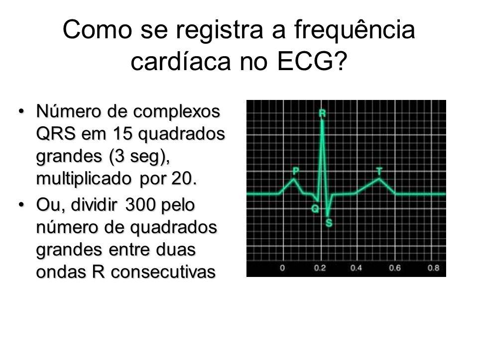 Como se registra a frequência cardíaca no ECG? Número de complexos QRS em 15 quadrados grandes (3 seg), multiplicado por 20.Número de complexos QRS em
