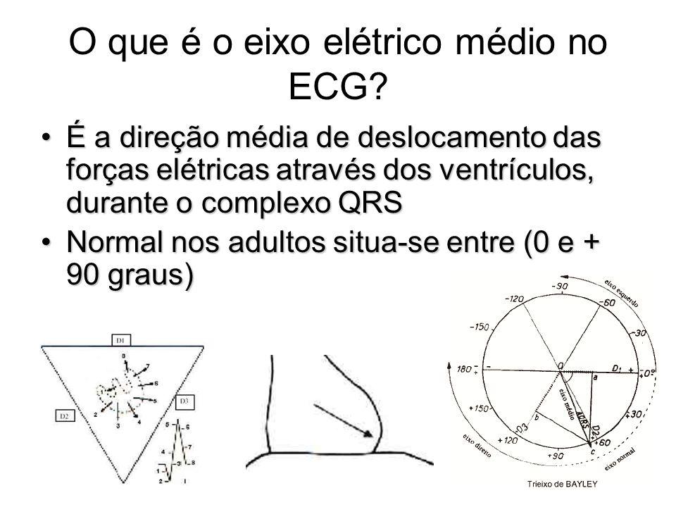 O que é o eixo elétrico médio no ECG? É a direção média de deslocamento das forças elétricas através dos ventrículos, durante o complexo QRSÉ a direçã