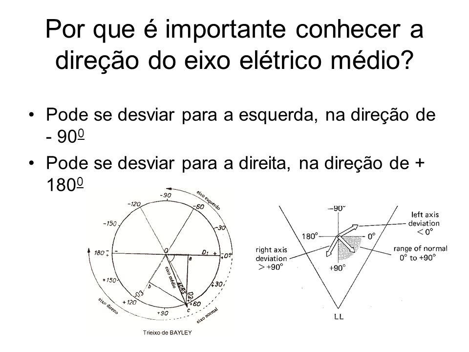 Por que é importante conhecer a direção do eixo elétrico médio? Pode se desviar para a esquerda, na direção de - 90 0 Pode se desviar para a direita,