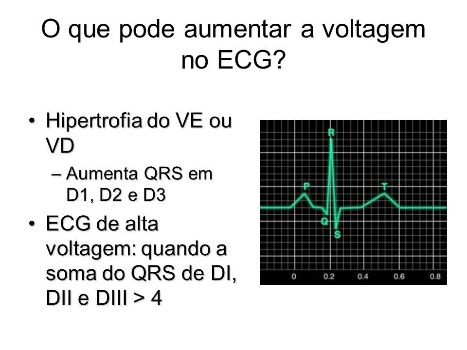 O que pode aumentar a voltagem no ECG? Hipertrofia do VE ou VDHipertrofia do VE ou VD –Aumenta QRS em D1, D2 e D3 ECG de alta voltagem: quando a soma