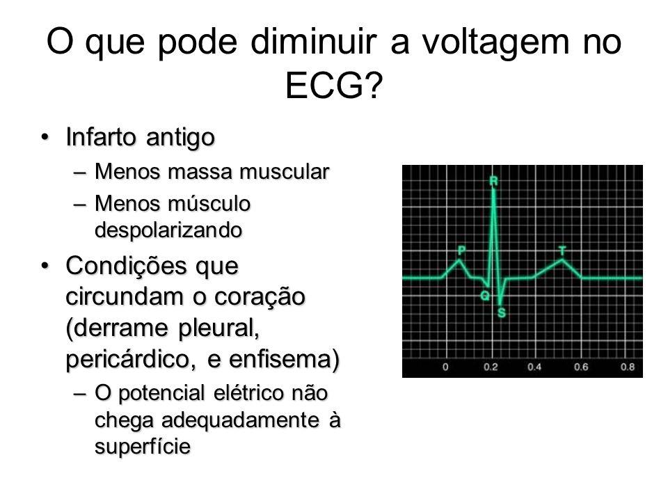 O que pode diminuir a voltagem no ECG? Infarto antigoInfarto antigo –Menos massa muscular –Menos músculo despolarizando Condições que circundam o cora