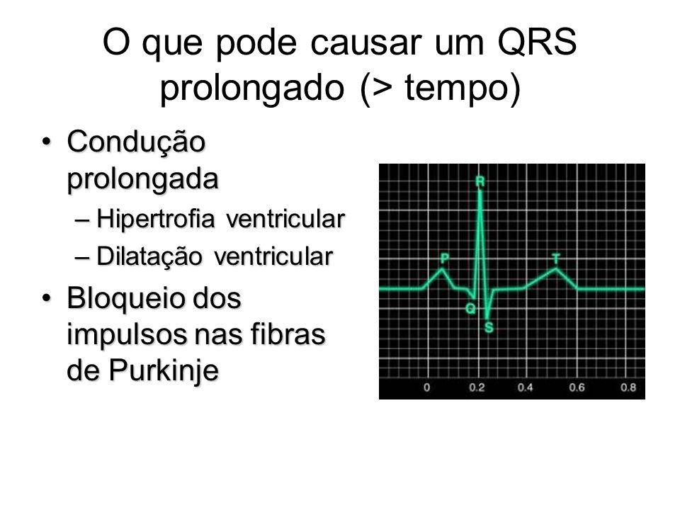 O que pode causar um QRS prolongado (> tempo) Condução prolongadaCondução prolongada –Hipertrofia ventricular –Dilatação ventricular Bloqueio dos impu
