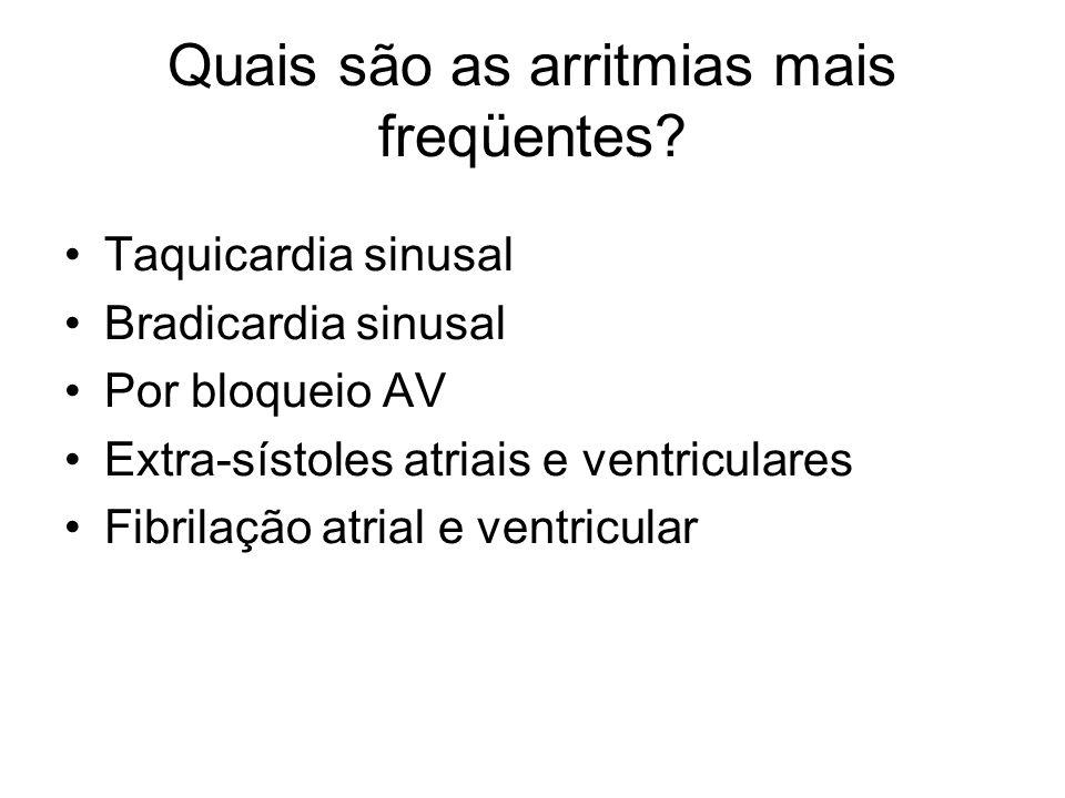 Quais são as arritmias mais freqüentes? Taquicardia sinusal Bradicardia sinusal Por bloqueio AV Extra-sístoles atriais e ventriculares Fibrilação atri