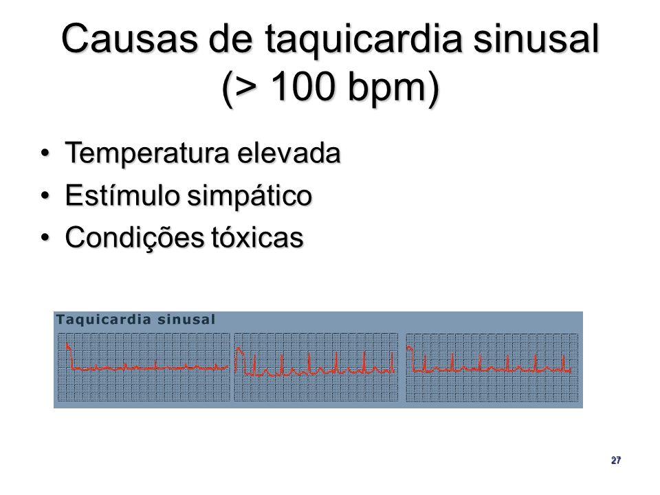 27 Causas de taquicardia sinusal (> 100 bpm) Temperatura elevadaTemperatura elevada Estímulo simpáticoEstímulo simpático Condições tóxicasCondições tó
