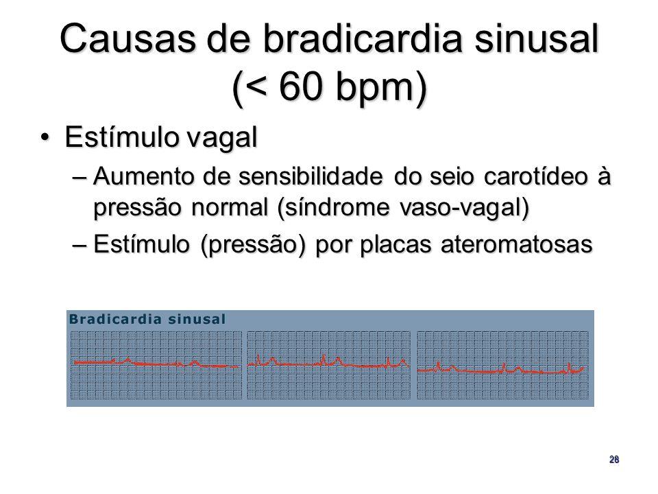 28 Causas de bradicardia sinusal (< 60 bpm) Estímulo vagalEstímulo vagal –Aumento de sensibilidade do seio carotídeo à pressão normal (síndrome vaso-v