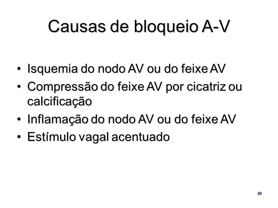 29 Causas de bloqueio A-V Isquemia do nodo AV ou do feixe AVIsquemia do nodo AV ou do feixe AV Compressão do feixe AV por cicatriz ou calcificaçãoComp