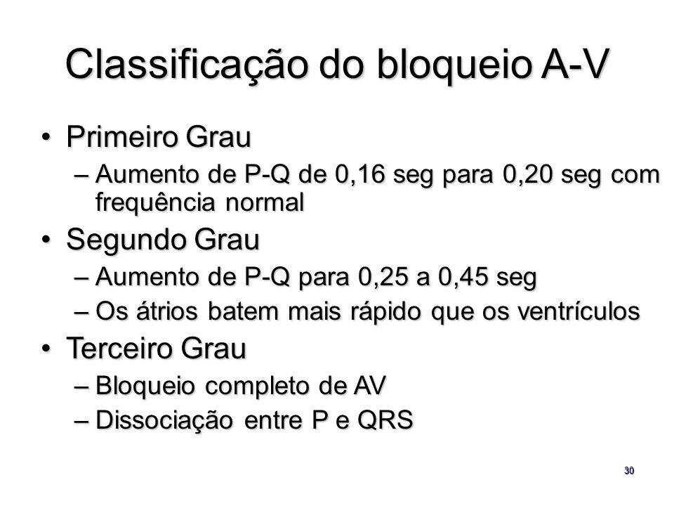 30 Classificação do bloqueio A-V Primeiro GrauPrimeiro Grau –Aumento de P-Q de 0,16 seg para 0,20 seg com frequência normal Segundo GrauSegundo Grau –
