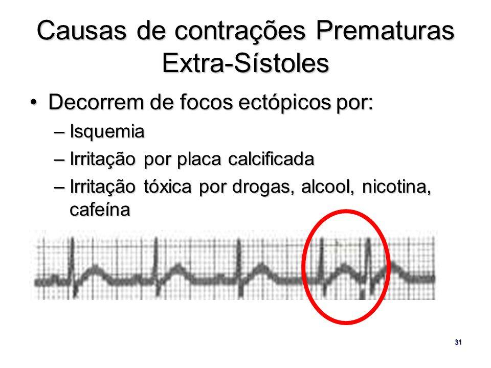 31 Causas de contrações Prematuras Extra-Sístoles Decorrem de focos ectópicos por:Decorrem de focos ectópicos por: –Isquemia –Irritação por placa calc