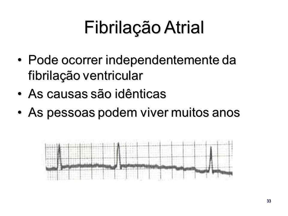 33 Fibrilação Atrial Pode ocorrer independentemente da fibrilação ventricularPode ocorrer independentemente da fibrilação ventricular As causas são id
