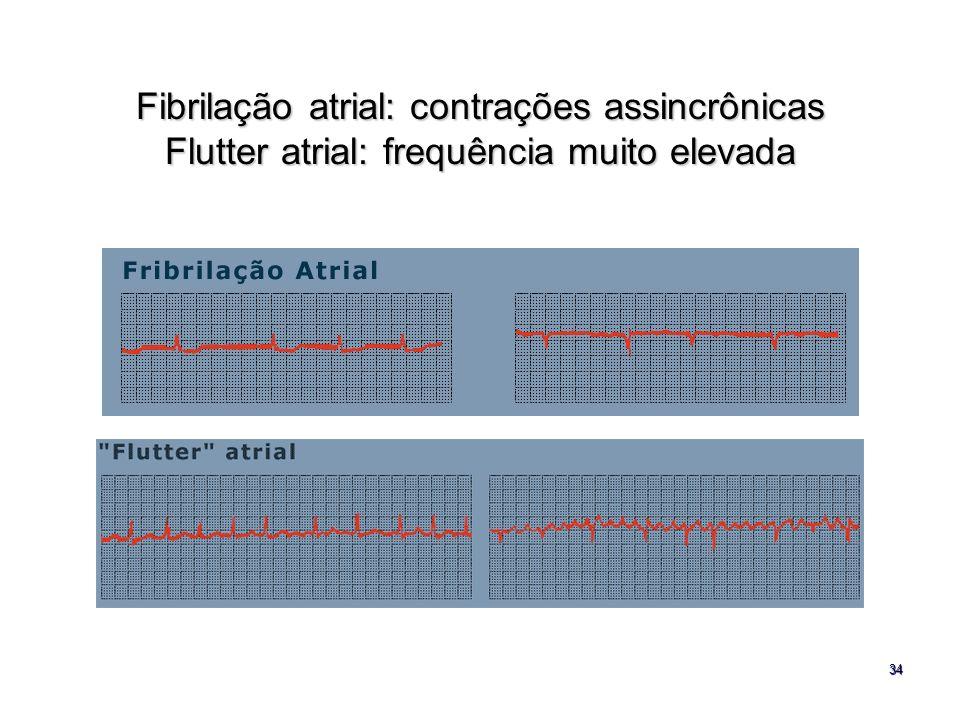 34 Fibrilação atrial: contrações assincrônicas Flutter atrial: frequência muito elevada