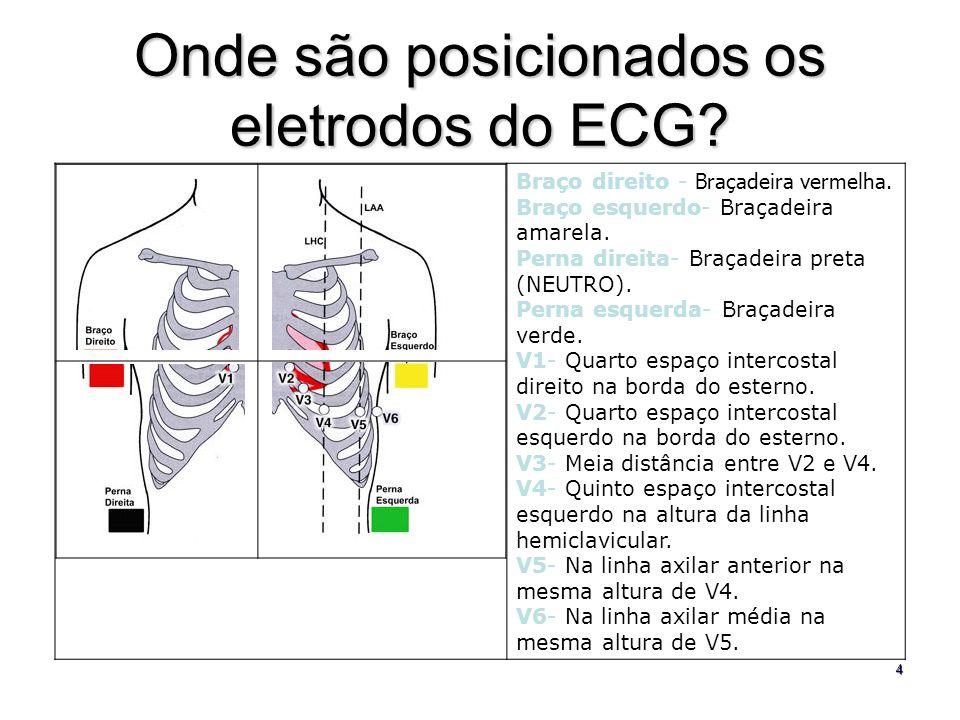 4 Onde são posicionados os eletrodos do ECG? Braço direito - Braçadeira vermelha. Braço esquerdo- Braçadeira amarela. Perna direita- Braçadeira preta