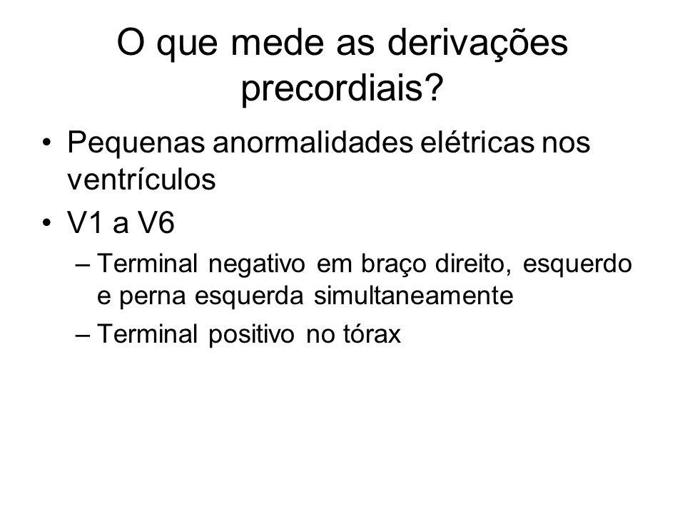 O que mede as derivações precordiais? Pequenas anormalidades elétricas nos ventrículos V1 a V6 –Terminal negativo em braço direito, esquerdo e perna e