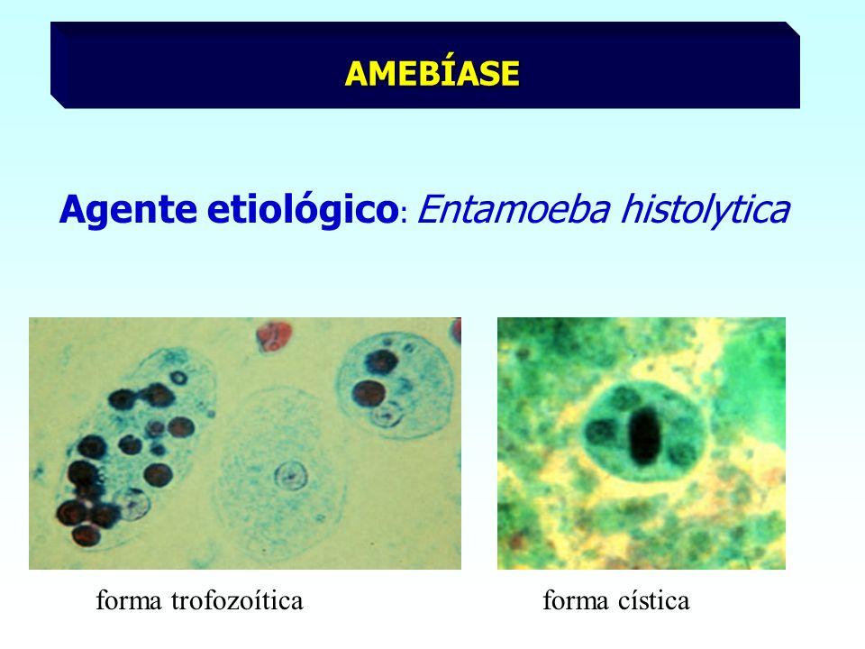 Agente etiológico : Entamoeba histolytica AMEBÍASE forma trofozoíticaforma cística