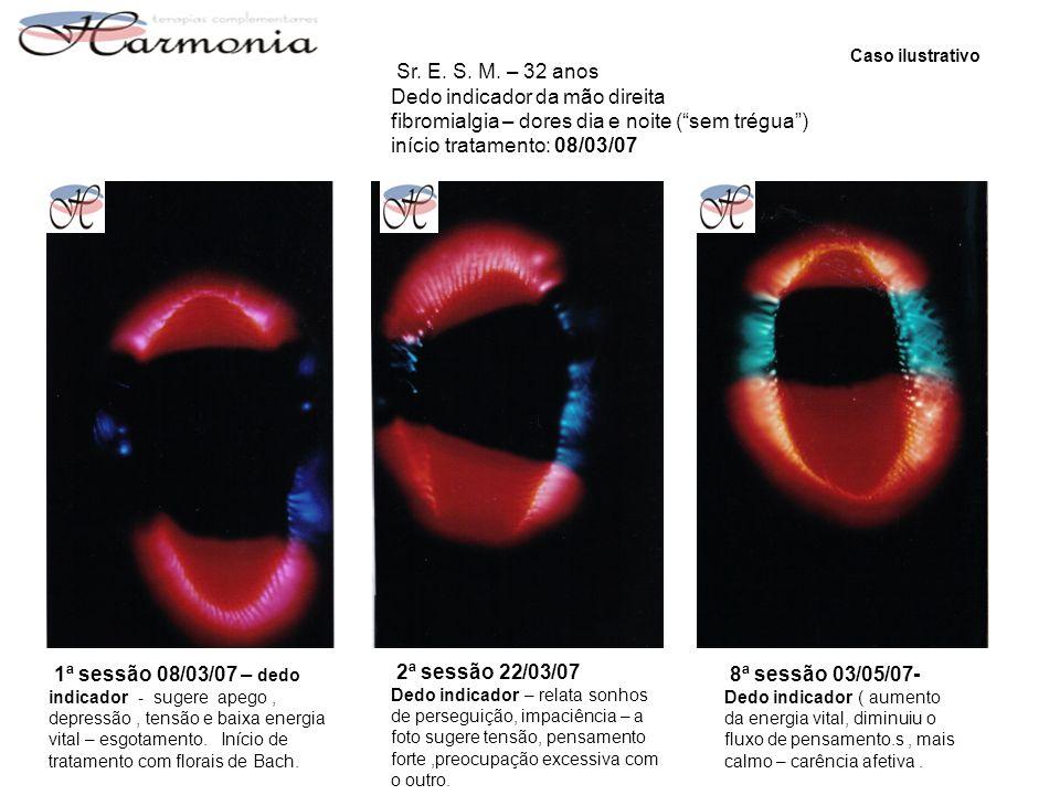 Sr. E. S. M. – 32 anos Dedo indicador da mão direita fibromialgia – dores dia e noite (sem trégua) início tratamento: 08/03/07 1ª sessão 08/03/07 – de