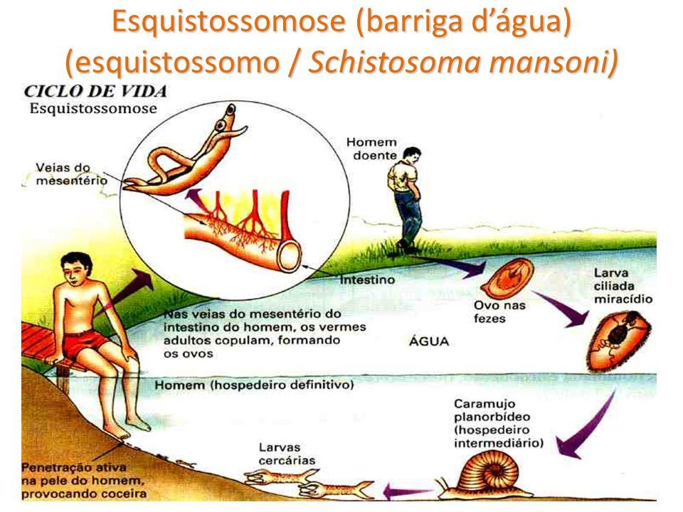 Esquistossomose (barriga dágua) (esquistossomo / Schistosoma mansoni)