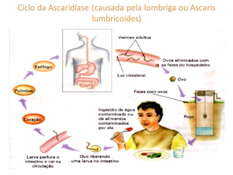 Ciclo da Ascaridíase (causada pela lombriga ou Ascaris lumbricoides)