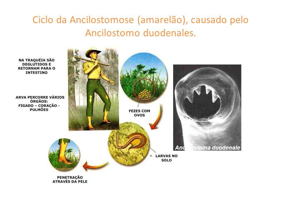 Ciclo da Ancilostomose (amarelão), causado pelo Ancilostomo duodenales.
