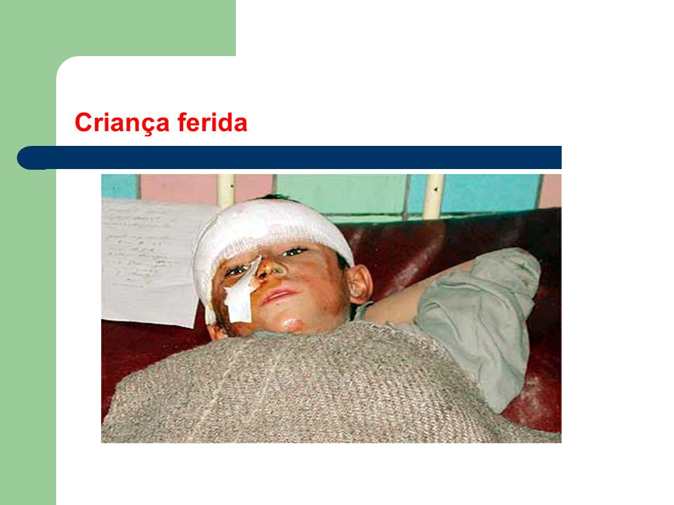 Iraque, 23/03/2003 - Ferido senta na rua depois de ataques próximos à Basra