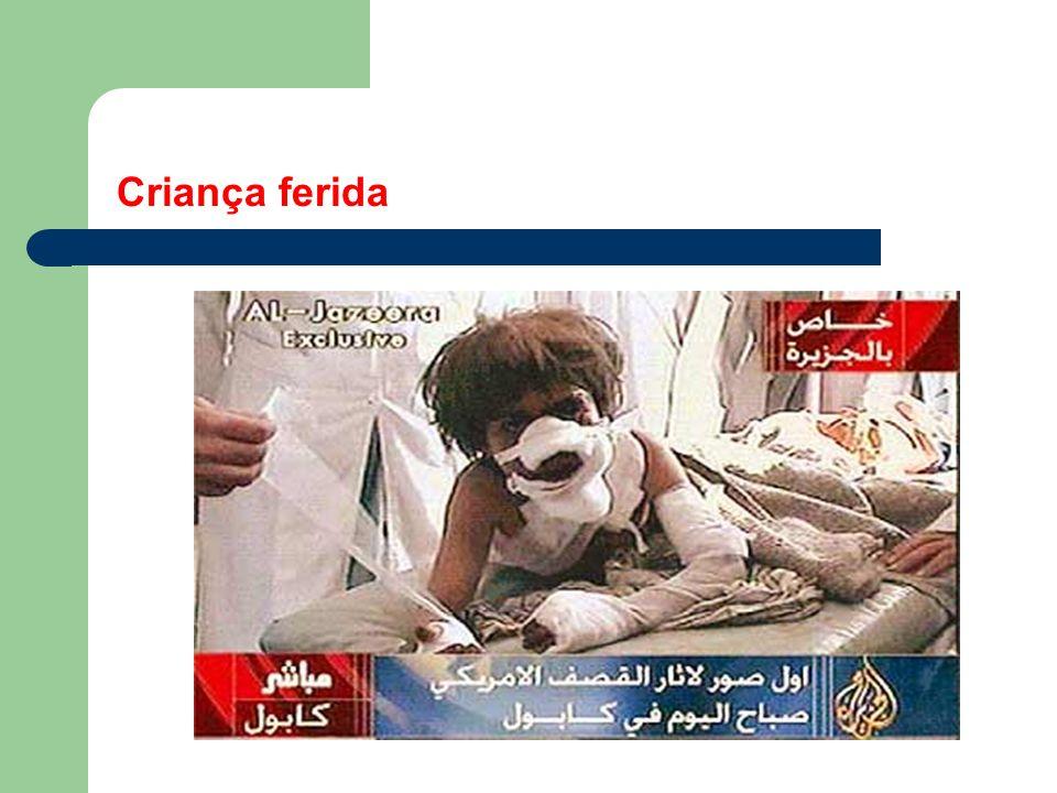 Garoto iraquiano ferido chora em hospital ao ser cercado por fotógrafos e cinegrafistas levados pelo governo