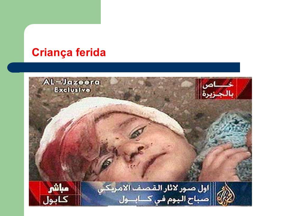 Iraque, 22/03/2003 - Civil ferido é atendido em Bagdá
