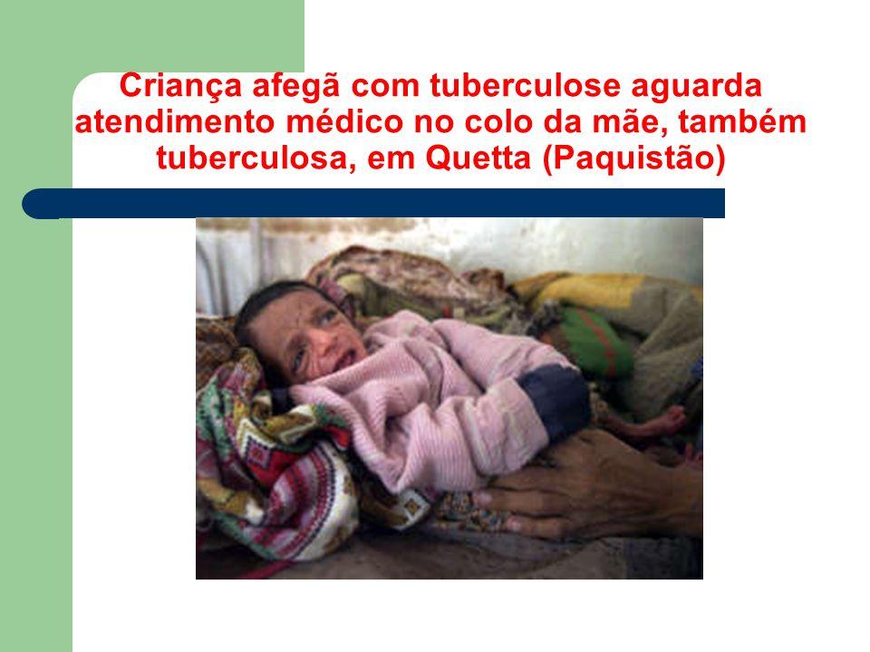 Criança afegã com tuberculose aguarda atendimento médico no colo da mãe, também tuberculosa, em Quetta (Paquistão)