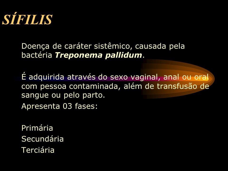 SÍFILIS Doença de caráter sistêmico, causada pela bactéria Treponema pallidum. É adquirida através do sexo vaginal, anal ou oral com pessoa contaminad