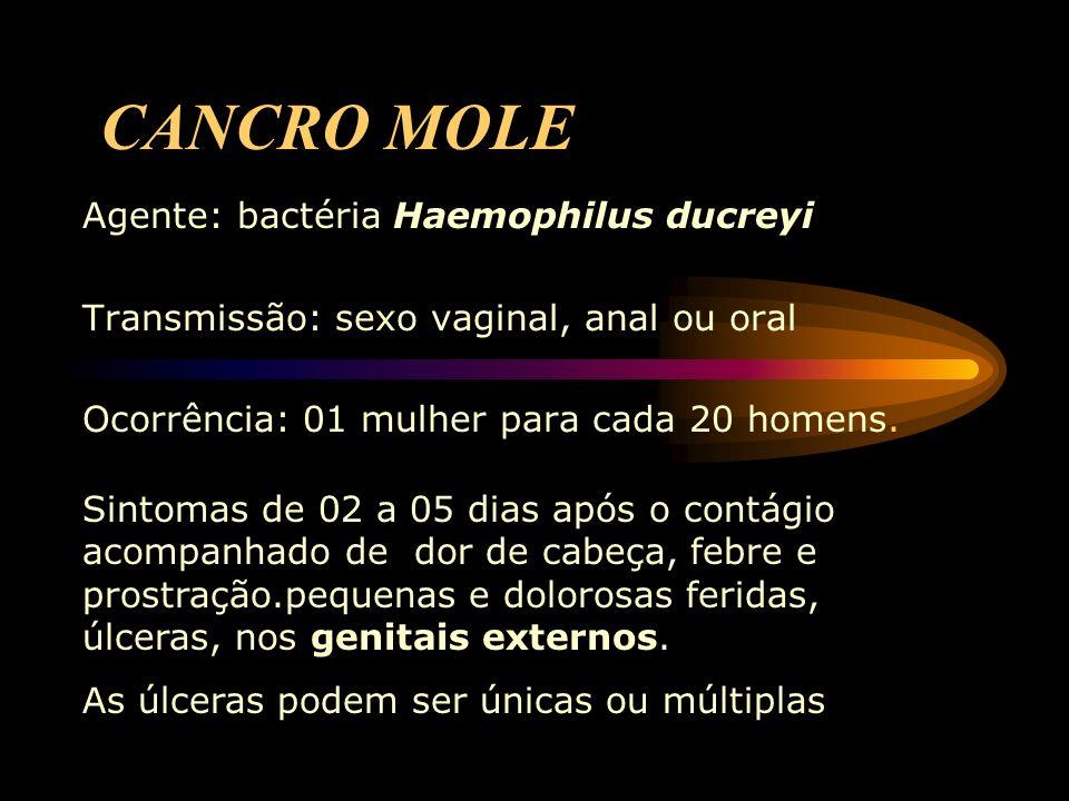 CANCRO MOLE Agente: bactéria Haemophilus ducreyi Transmissão: sexo vaginal, anal ou oral Ocorrência: 01 mulher para cada 20 homens. Sintomas de 02 a 0