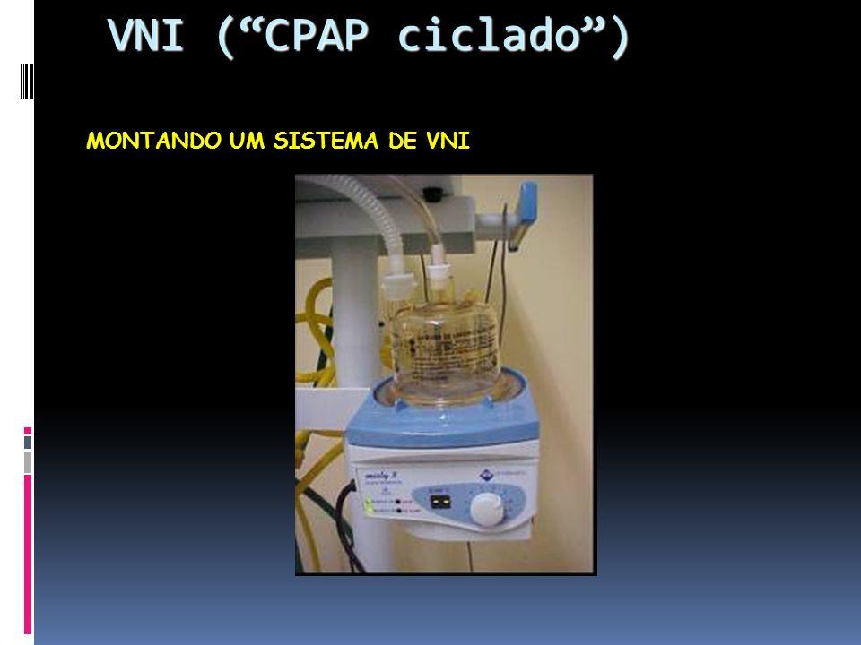 MONTANDO UM SISTEMA DE VNI VNI (CPAP ciclado) VNI (CPAP ciclado)