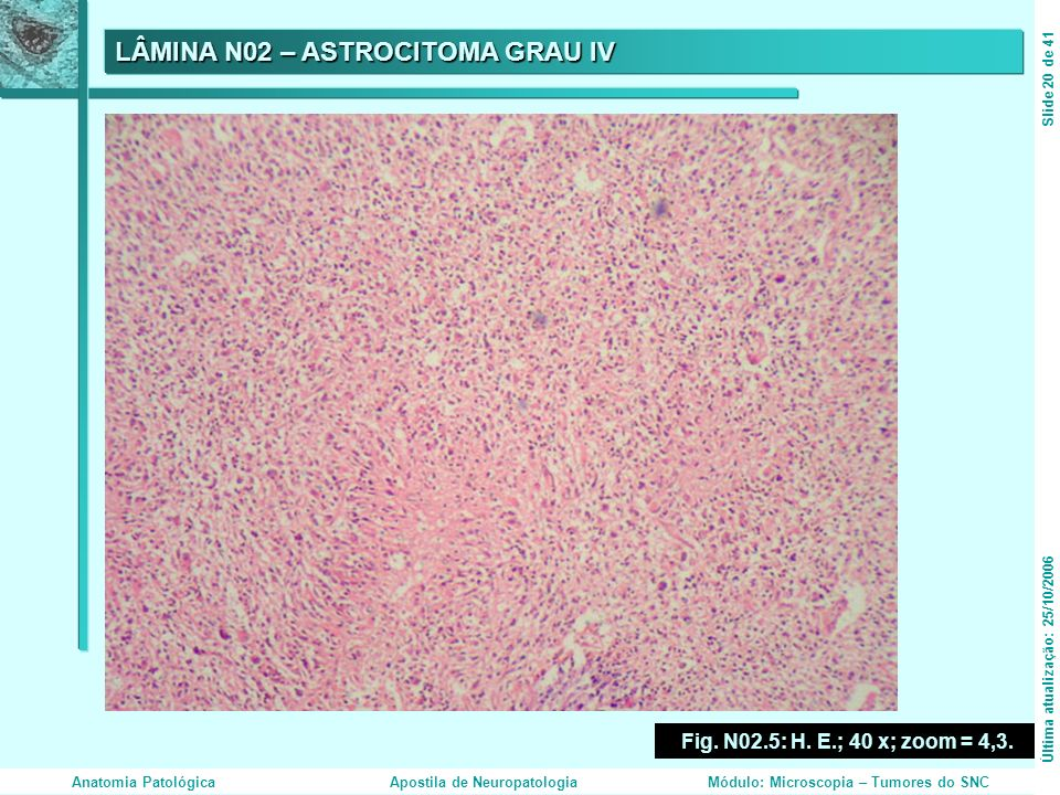 LÂMINA N02 – ASTROCITOMA GRAU IV Fig. N02.5: H. E.; 40 x; zoom = 4,3. Última atualização: 25/10/2006Slide 20 de 41 Anatomia PatológicaApostila de Neur