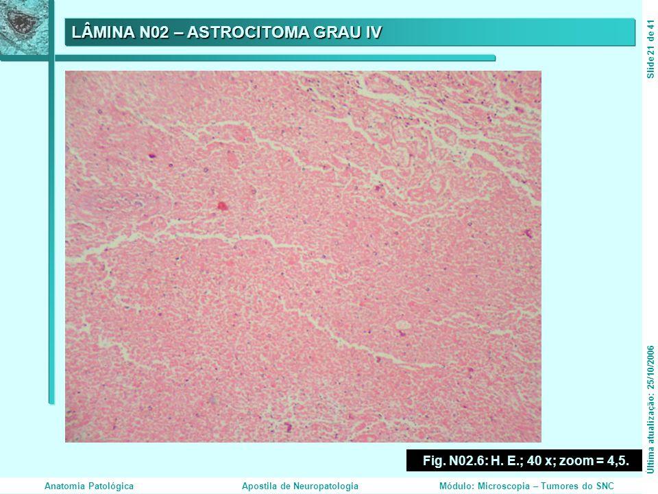 LÂMINA N02 – ASTROCITOMA GRAU IV Fig. N02.6: H. E.; 40 x; zoom = 4,5. Última atualização: 25/10/2006Slide 21 de 41 Anatomia PatológicaApostila de Neur