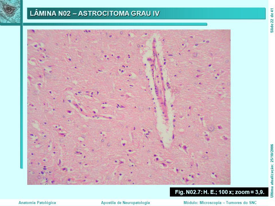 LÂMINA N02 – ASTROCITOMA GRAU IV Fig. N02.7: H. E.; 100 x; zoom = 3,9. Última atualização: 25/10/2006Slide 22 de 41 Anatomia PatológicaApostila de Neu