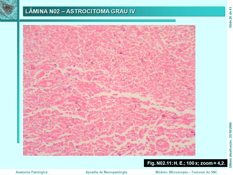 LÂMINA N02 – ASTROCITOMA GRAU IV Fig. N02.11: H. E.; 100 x; zoom = 4,2. Última atualização: 25/10/2006Slide 26 de 41 Anatomia PatológicaApostila de Ne