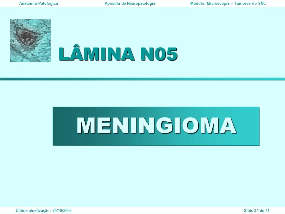 MENINGIOMA LÂMINA N05 Anatomia PatológicaApostila de NeuropatologiaMódulo: Microscopia – Tumores do SNC Última atualização: 25/10/2006Slide 37 de 41