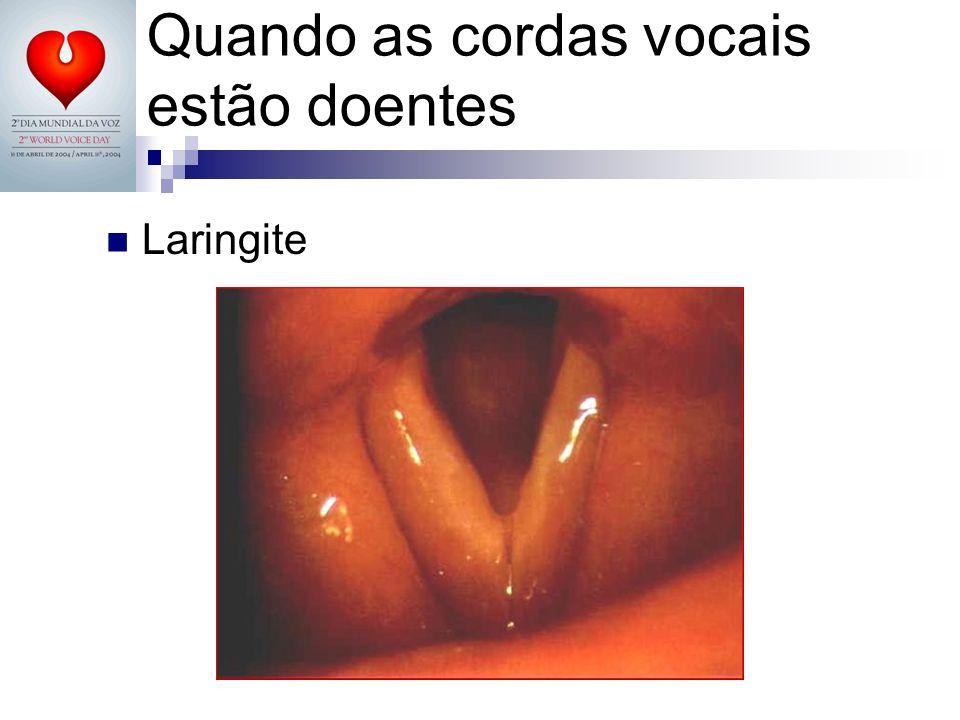 Laringite Quando as cordas vocais estão doentes
