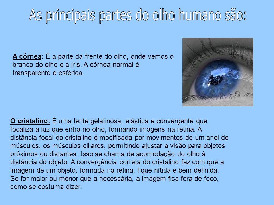 A córnea: É a parte da frente do olho, onde vemos o branco do olho e a íris. A córnea normal é transparente e esférica. O cristalino: É uma lente gela