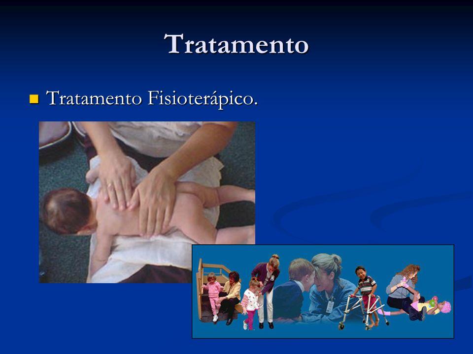 Tratamento Tratamento Fisioterápico. Tratamento Fisioterápico.