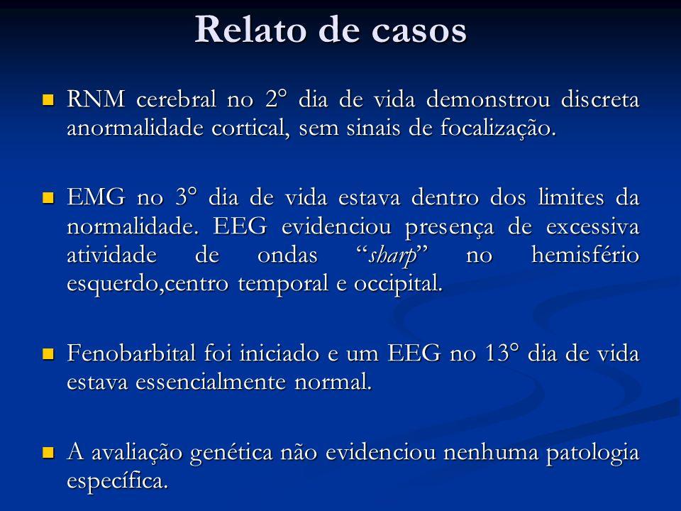 Relato de casos RNM cerebral no 2° dia de vida demonstrou discreta anormalidade cortical, sem sinais de focalização. RNM cerebral no 2° dia de vida de