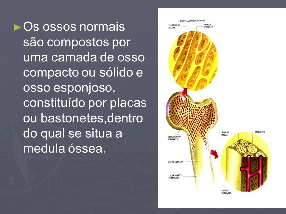 Os ossos normais são compostos por uma camada de osso compacto ou sólido e osso esponjoso, constituído por placas ou bastonetes,dentro do qual se situ