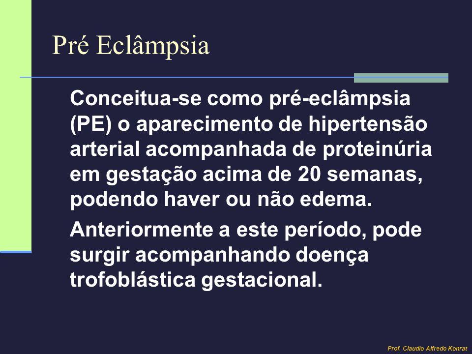 Pré Eclâmpsia Conceitua-se como pré-eclâmpsia (PE) o aparecimento de hipertensão arterial acompanhada de proteinúria em gestação acima de 20 semanas,