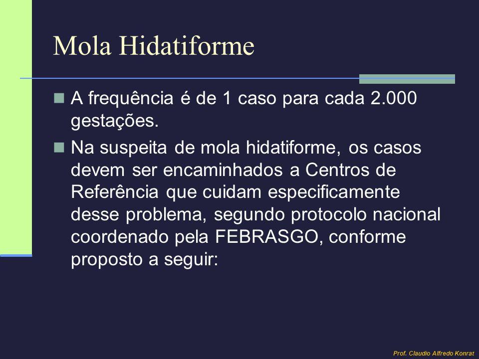 Mola Hidatiforme A frequência é de 1 caso para cada 2.000 gestações. Na suspeita de mola hidatiforme, os casos devem ser encaminhados a Centros de Ref