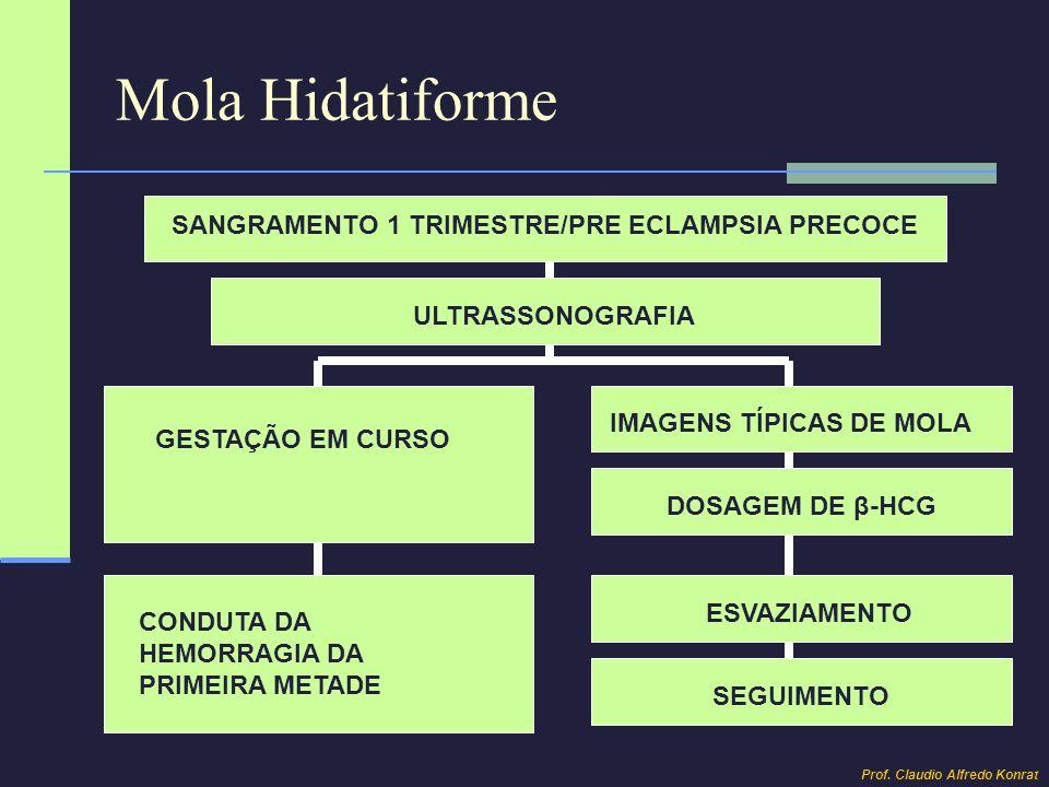 Mola Hidatiforme SANGRAMENTO 1 TRIMESTRE/PRE ECLAMPSIA PRECOCE ULTRASSONOGRAFIA GESTAÇÃO EM CURSO CONDUTA DA HEMORRAGIA DA PRIMEIRA METADE IMAGENS TÍP