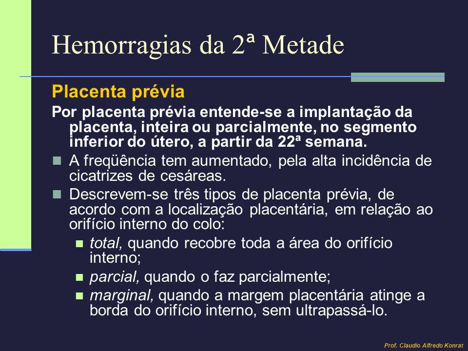 Hemorragias da 2 ª Metade Placenta prévia Por placenta prévia entende-se a implantação da placenta, inteira ou parcialmente, no segmento inferior do ú