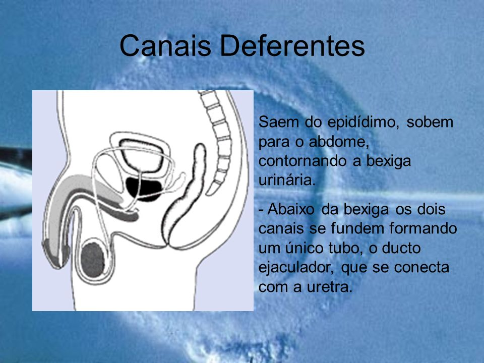Canais Deferentes Saem do epidídimo, sobem para o abdome, contornando a bexiga urinária. - Abaixo da bexiga os dois canais se fundem formando um único