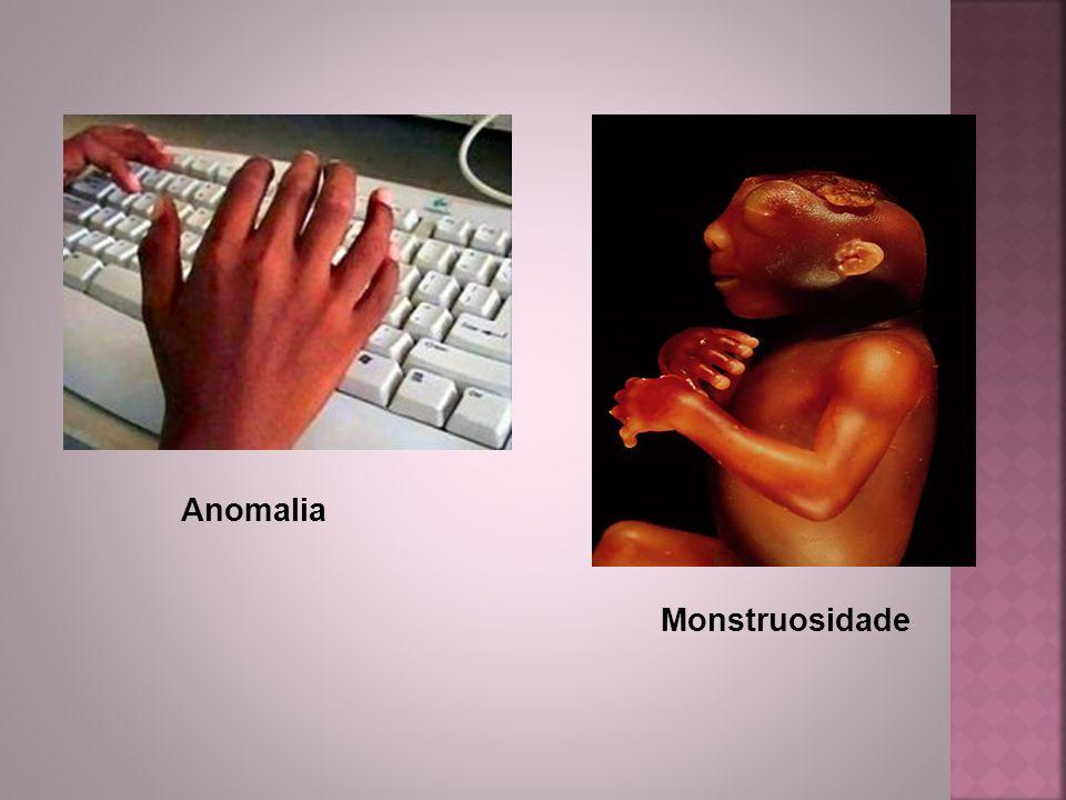 Anomalia Monstruosidade