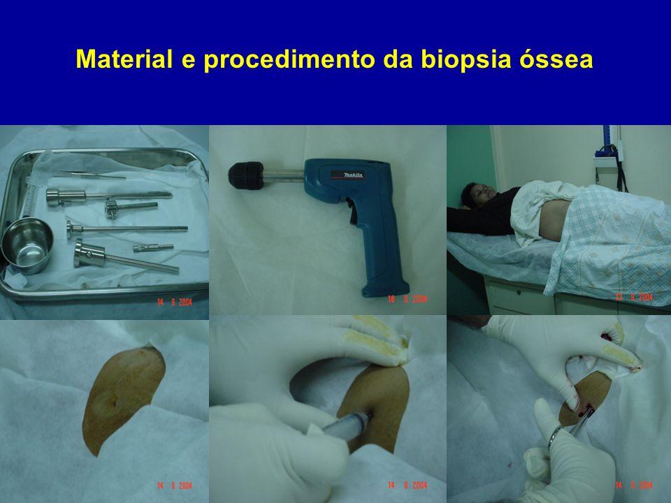 Prevention of aluminium exposure through dialysis fluids.